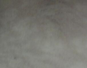武汉儿童医院治疗白癜风?少年如何预防白癜风呢?