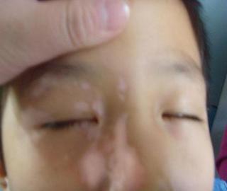 武汉专业看白斑病的医院?白癜风是怎么产生的呢