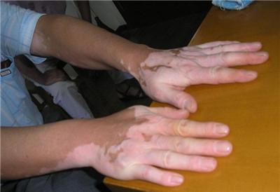 武汉手臂白癜风的症状会有哪些呢?